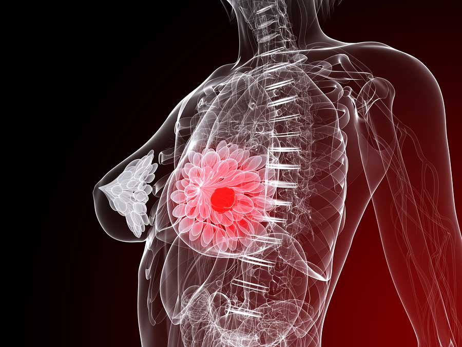 3d rendered illustration of a female anatomy with tumor in breast.