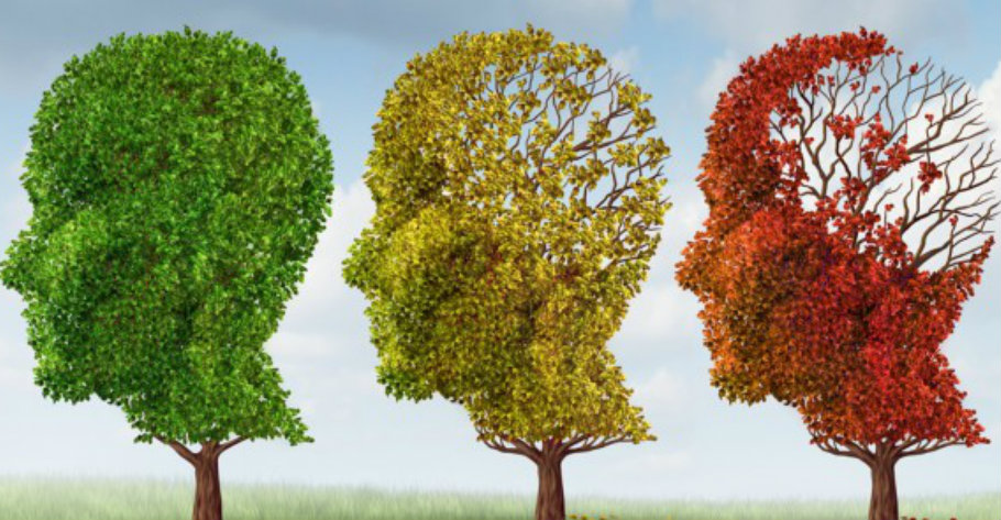 Alzheimer's disease is a chronic neurodegenerative disease. It is the cause of almost 70% of dementia cases worldwide. Image Credit: Live Science