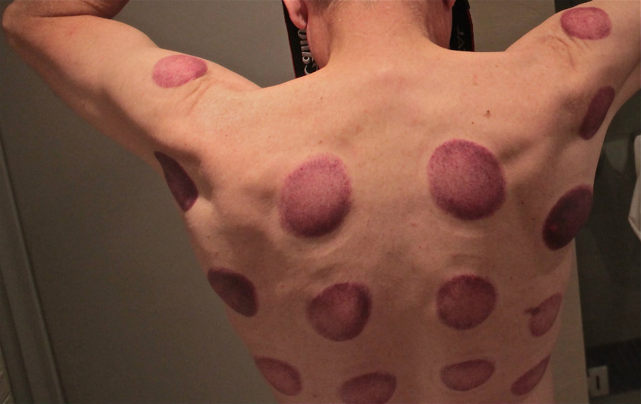 It is important to understand that cupping must be executed by professionals because it can bring damages to the skin and muscles if it is not. Photo credit: Turn There WordPress