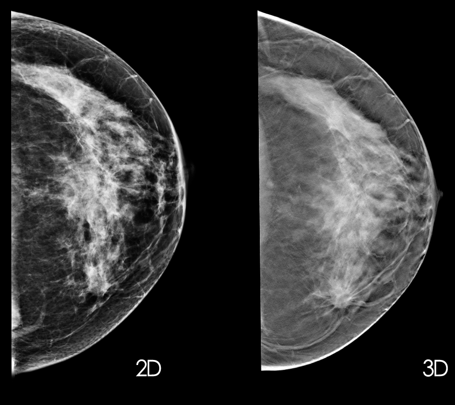 New guidelines: Mammograms should start at 50