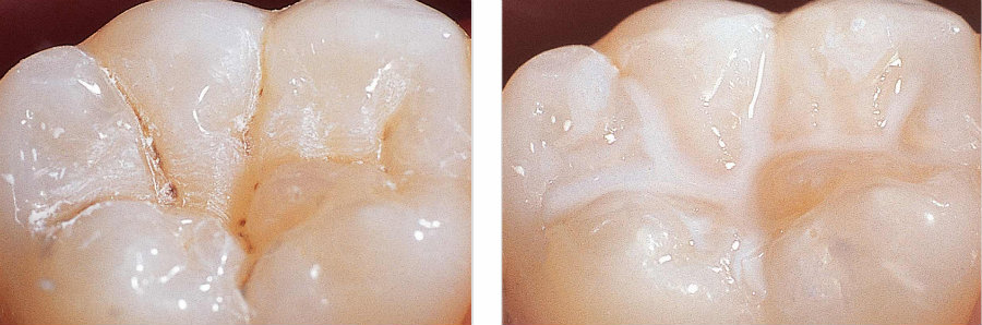 Dental sealants, before and after. Photo credit: Lincoln Shine Dental