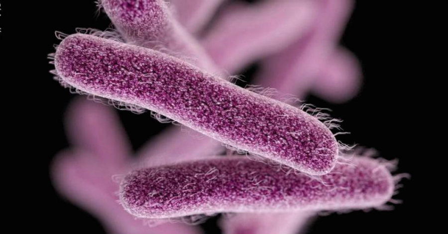 Health officials have reported dozens of Shigellosis cases among city residents. Photo credit: Shigella Blog