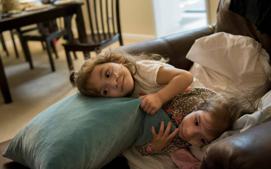 Eva and Erika Sandoval are finally two separate toddlers. Photo credit: Sacbee / Pekker Health
