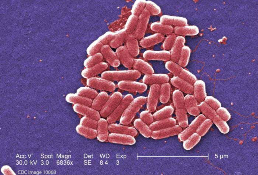 E coli Infection Causes Symptoms amp Prevention  Healthline