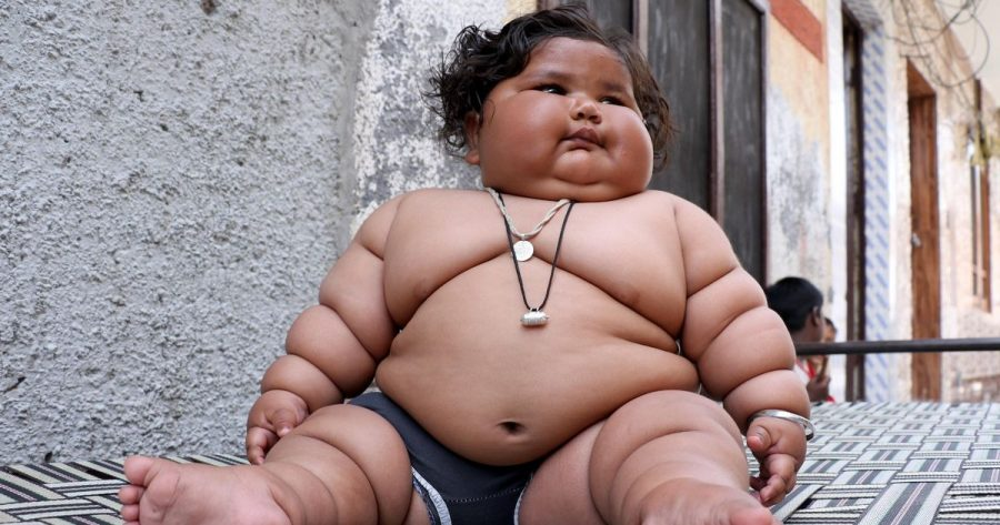Morbidly obese baby girl born in India