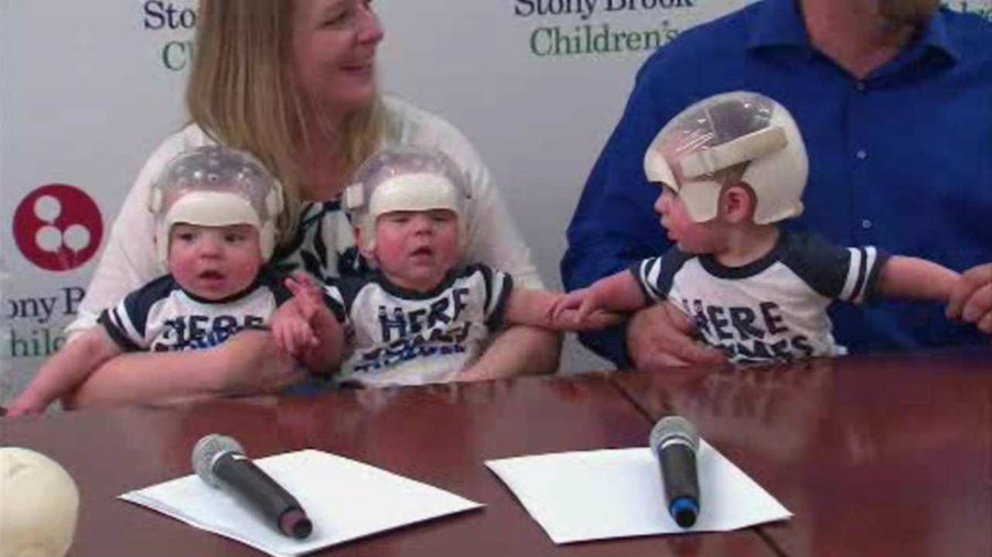 Three New York infants underwent surgery to treat their skulls whose soft tissue fused prematurely. Image credit: ABC 7