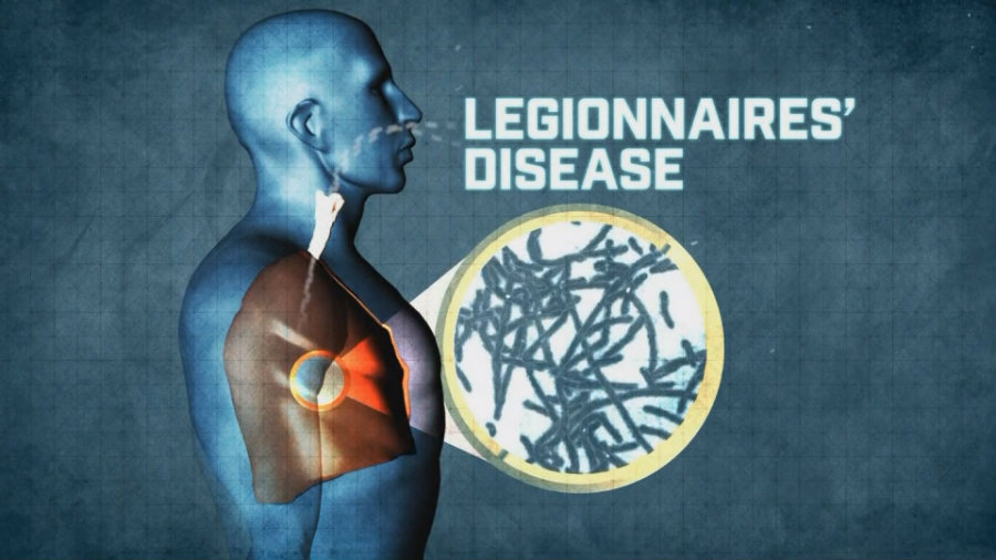 the cause and symptoms of the legionnaires disease Pontiac fever is an acute, nonfatal respiratory disease caused by various species of gram-negative bacteria in the genus legionella it causes a mild upper.