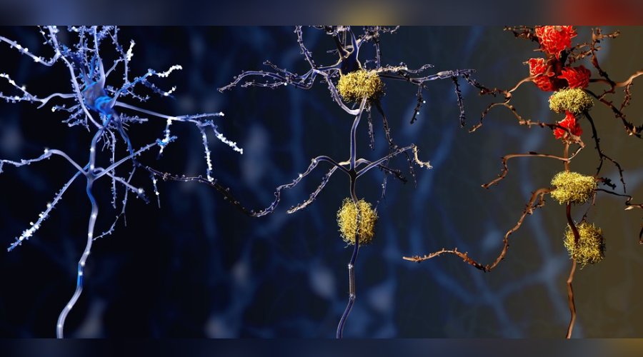 High insulin levels ay increase amyloid accumulation in the brain, therefore potentially increasing the risk of suffering from Alzheimer's. Image credit: Alzheimer News Today