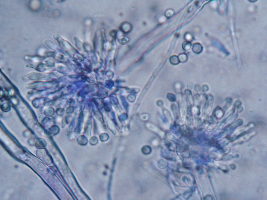 """""""Aspergillus Versicolor, a potent producer of sterigmatocystin (STG), is one of the most frequent fungal contaminants of indoor environments that can be found together in building materials, in dust or in the air samples."""" Image Credit: MYCOTA"""