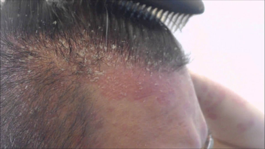 Psoriasis is a common condition that accelerates the production of the skin cells. Image credit: Huy Ngo Youtube Channel