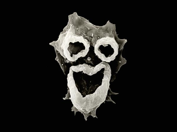 amoeba-naegleria-fowleri