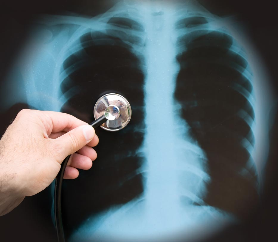pneumonia-xray