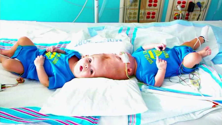 Conjoined twins Jadon and Anias were successfully separated after 16 hours of surgery. Photo credit: ABC 7