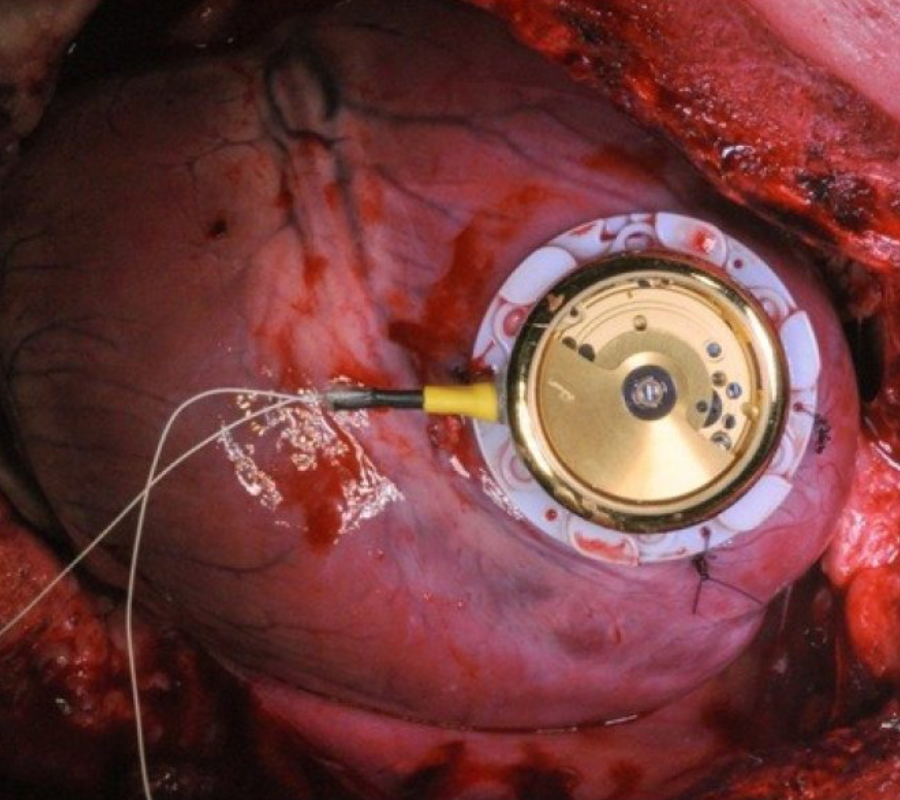Batteryless cardiac pacemaker