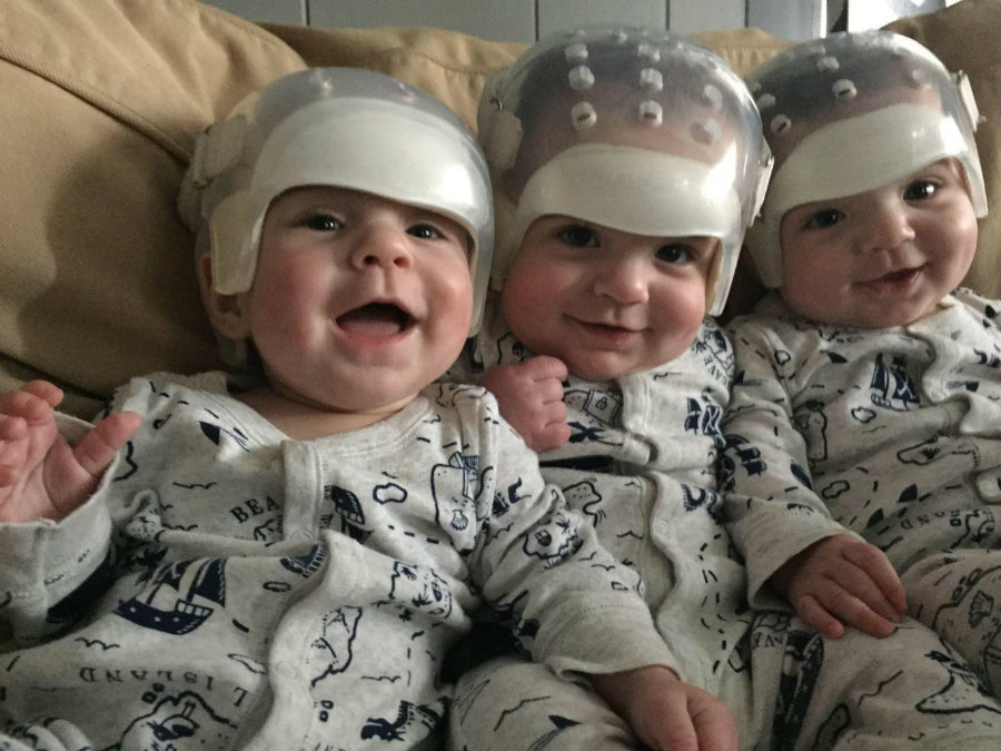 Kaden, Jackson, and Hunter were operated upon at Stony Brook University Hospital in January. Image credit: Facebook page of Stony Brook Children's Hospital / Independent
