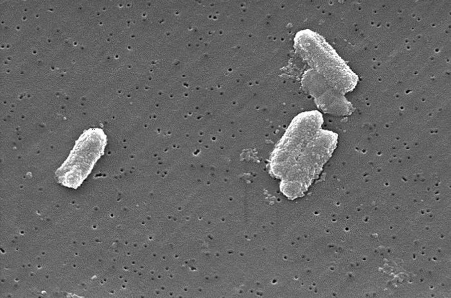 Vibrio vulnificus or Citrobacter  freundii. Image Credit: CDC