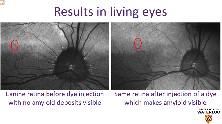 Before and after of the new Alzheimer's retina test. Image Credit: University of Waterloo.