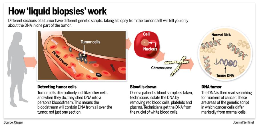 Infographic explaining how liquid biopsies work. Image Credit: Qiagen / Journal Sentinel.