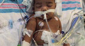 Kidney transplant delayed for 2-year-old, Atlanta 2-year-old kidney transplant