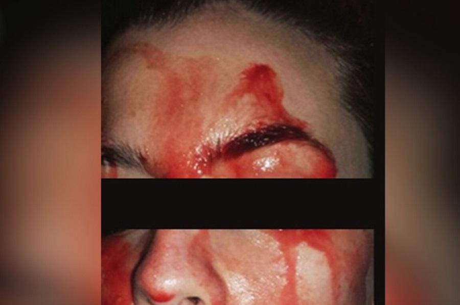 Hematohidrosis, Hematidrosis