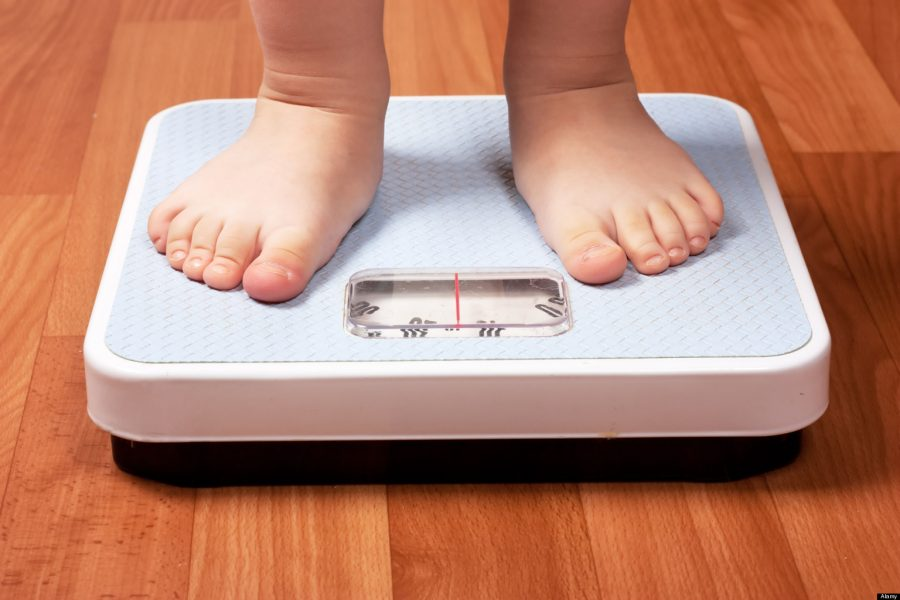 Obesity in the world 2017, Obesity statics worldwide, Childhood obesity articles