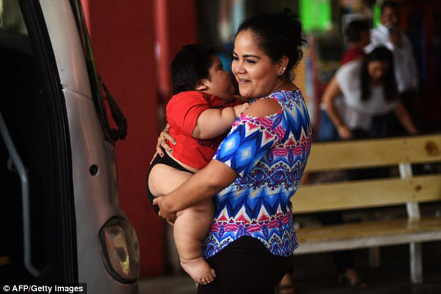 Mexican overweight baby, Luis Gonzales, Prader-Willi Syndrome