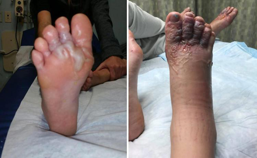 Feet 'deformed' after beach stroll