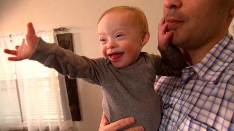 Gerber use a child with Down Syndrome as its image, Down baby Lucas Warren as Gerber Spokesbaby